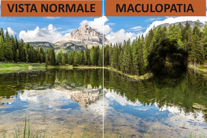 maculopatia_patologie