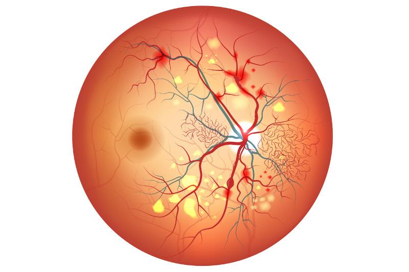 retinopatia_diabetica